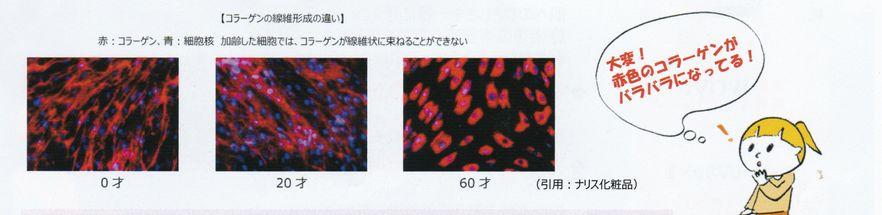 コラーゲン繊維形成の違い